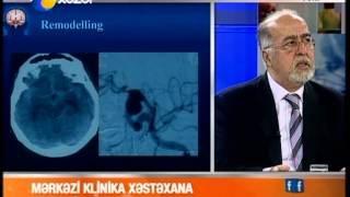 Beyin Kanaması Nedenleri