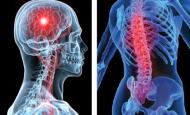Nöroşirürji Nedir