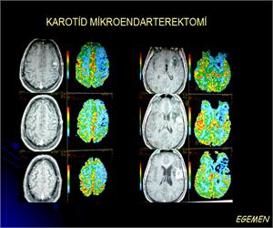 Karotid Mikroendarterektomi