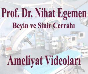 Açık Beyin Ameliyatı – Karotis mikroendarterektomi-3