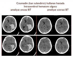 beyin-kanamasi-1