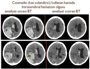 beyin-kanamasi-2