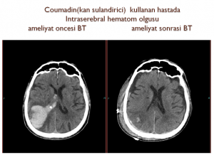 beyin-kanamasi-3
