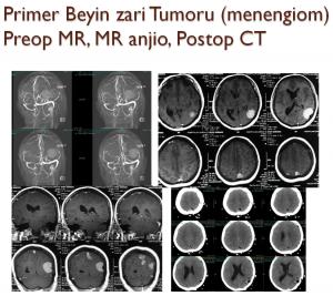 beyin-tumoru-1