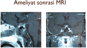 hipofiz-tumorleri-3
