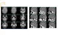 Beyin Tümörlerinin Mikrocerrahi Tedavisi