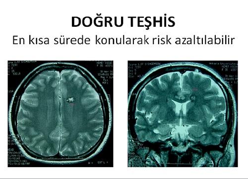 beyin kanama tümör doğru teşhis