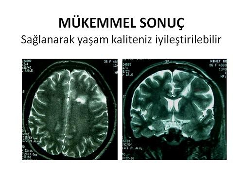 beyin kanama tümör doğru tedavisi sonuç