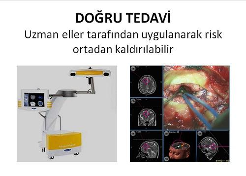 beyin kanama tümör doğru tedavisi