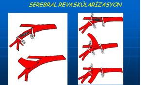 Serebral Revaskülarizasyon Uygulama Alanları ve Cerrahi Teknik